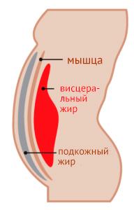 bruchnaya